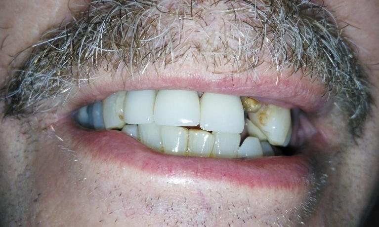 Fractured-Tooth-Repair-Before-Image
