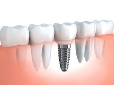 Implant and Tooth | Dental Implant Aurora IL