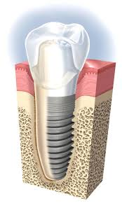 Dental implant diagram | Dentist Aurora Il