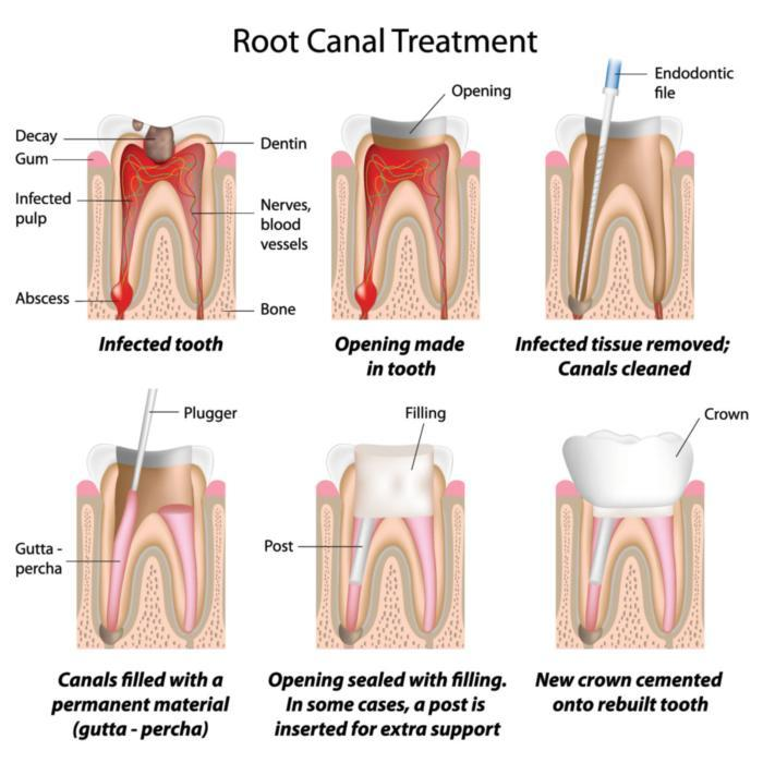 Diagram of root canal procedure | Dentist Aurora IL