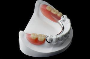 Partial Dentures | Aurora IL Dentist