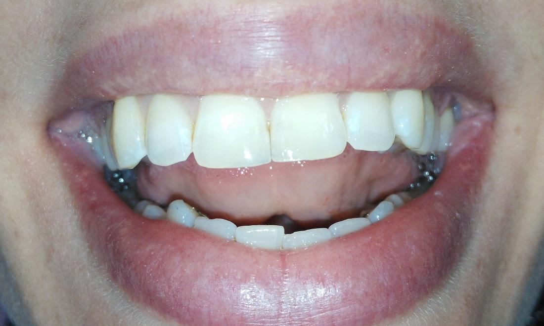 Tooth-colored resin fix chipped front teeth | Prairie Dental Care