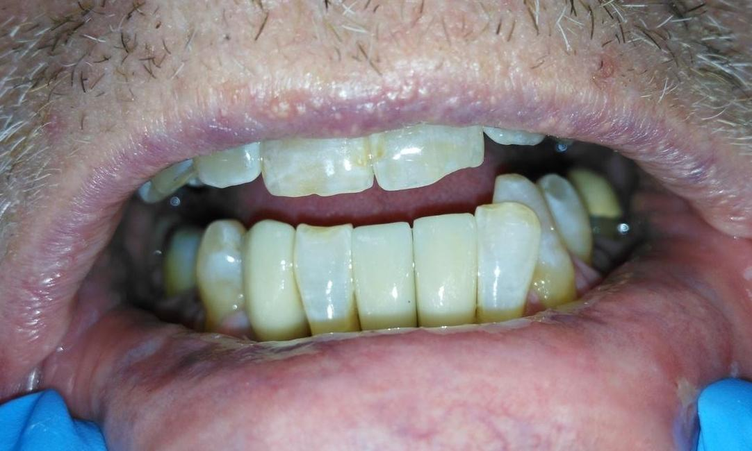 Dental implants for bottom front teeth | Prairie Dental Care