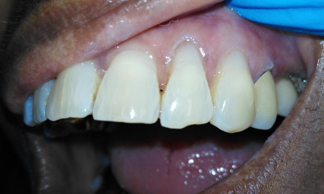 Resin bonding to replace worn teeth | Dentist Aurora IL