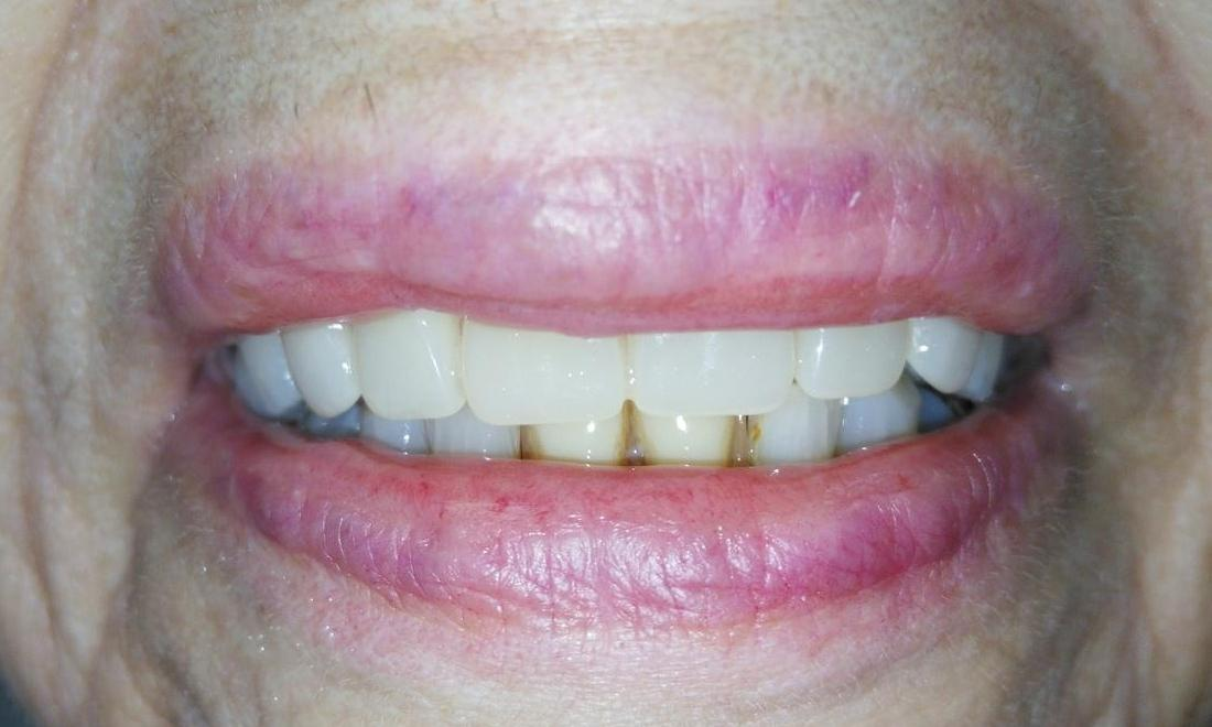 Full upper denture to replace front teeth | Dentist Aurora IL