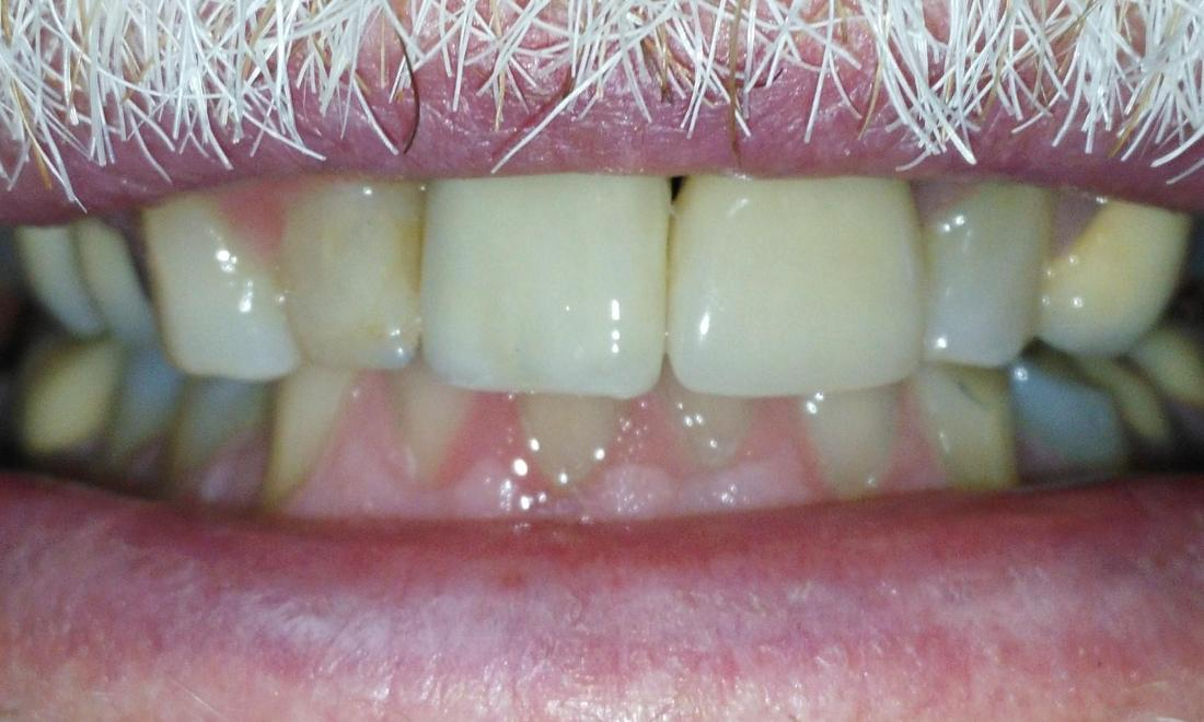 Implant and Crown Restoration