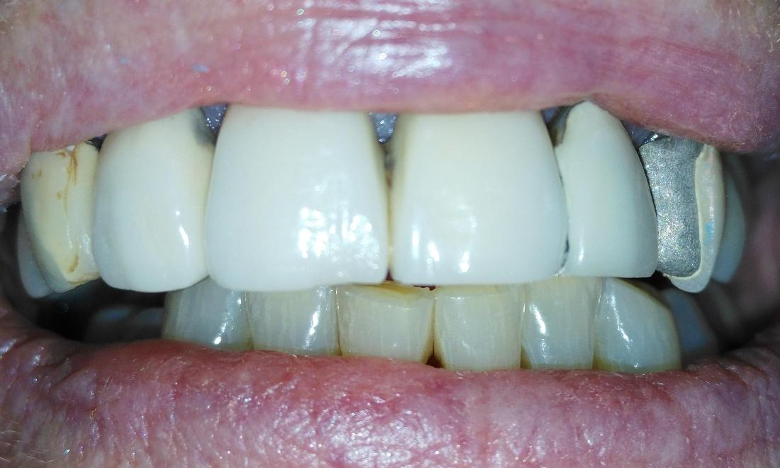 Old, chipped dental bridge for front teeth | Aurora IL Dentist