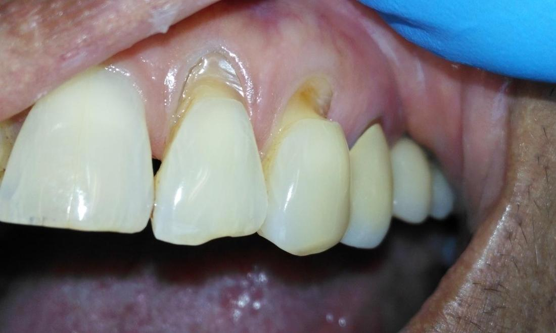 Severe wear on two teeth near gum line | Prairie Dental Care