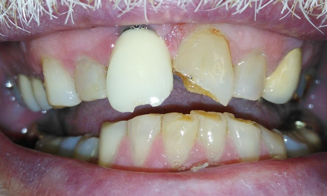 Fractured front teeth | Prairie Dental Care