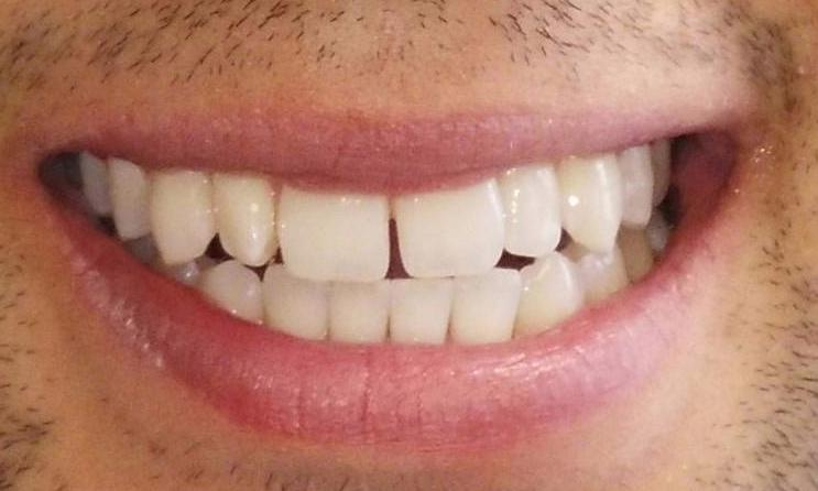 Crooked teeth with gaps | Aurora IL Dentist