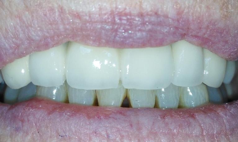 Anterior-Porcelain-Fused-to-Bridge-After-Image