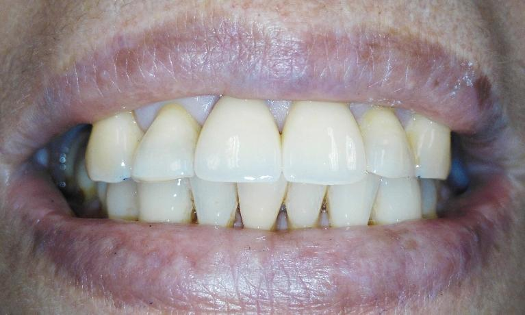 Crowns-to-fix-chipped-discolored-front-teeth-After-Image