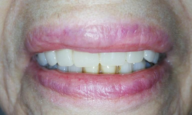 Custom-Made-Full-Denture-After-Image