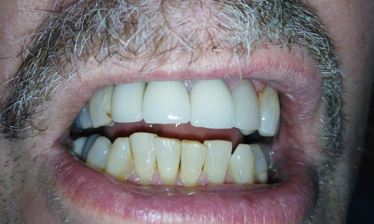 Fractured-Tooth-Repair-After-Image