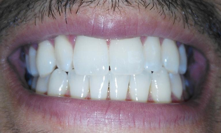 Invisalign-treatment-to-close-gaps-between-teeth-After-Image
