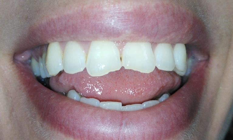 Composite-resin-bondings-to-fix-chipped-front-teeth-Before-Image