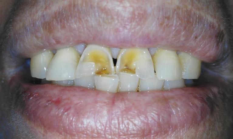 Crowns-to-fix-chipped-discolored-front-teeth-Before-Image