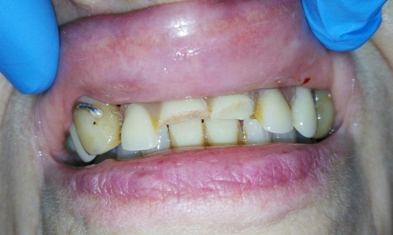 Custom-Made-Full-Denture-Before-Image